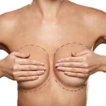Cirugía de pecho ibiza life clinica