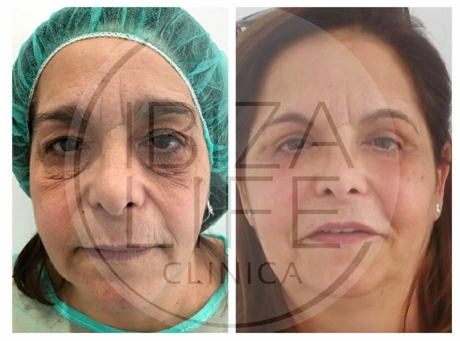 cirugía de párpado
