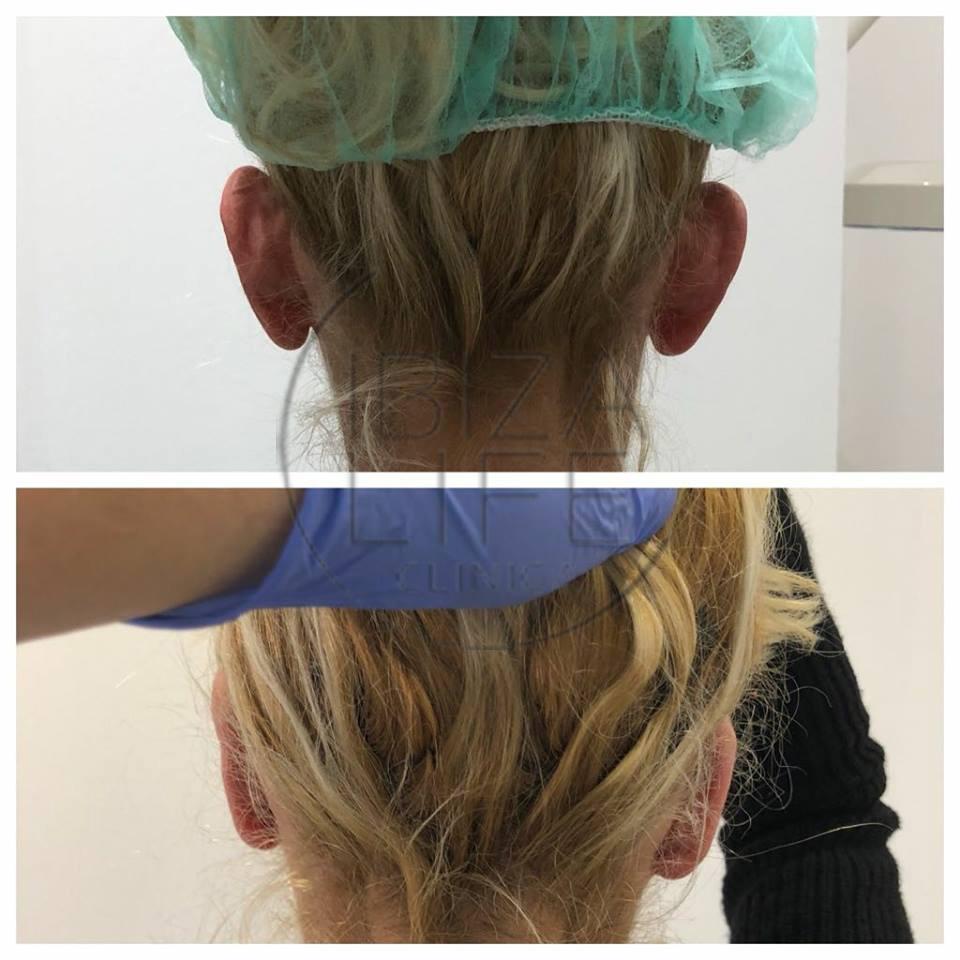 cirugía-orejas